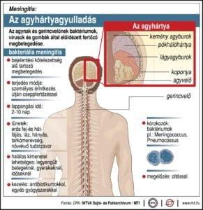 agyhartyagyulladas-MTI