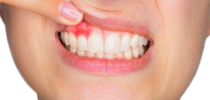 Ízületi betegségeket, koraszülést is okozhat a fogínysorvadás