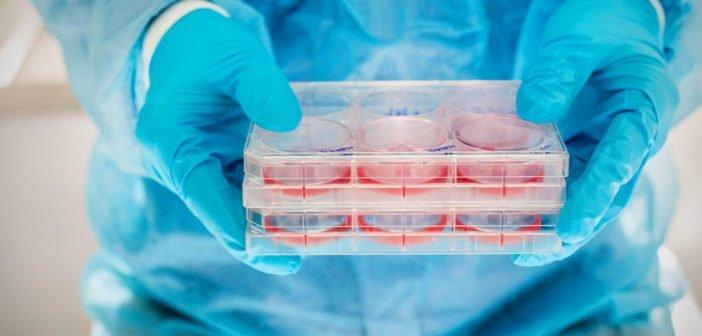 Őssejt-transzplantációval lelassították a szklerózis multiplex súlyosbodását